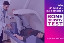 Photo of Why Should You Be Getting A Bone Density Test?