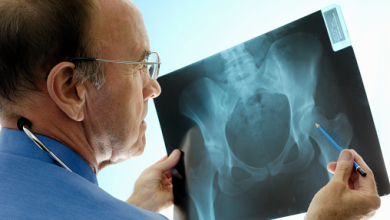 Photo of Best Orthopedic Doctor/Surgeon For Hip Replacement | Top Orthopedic Surgeon